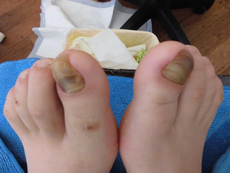 の 臭い 爪 足 親指